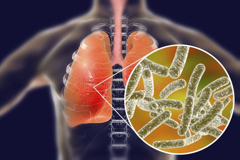 De bacteriën van Legionellapneumophila vector illustratie