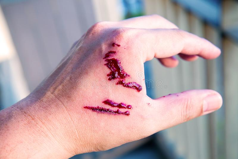 De beetwond en bloed van de nadrukhond op hand Besmetting en Hondsdolheidsconcept stock afbeeldingen