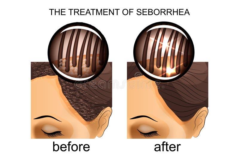 De behandeling van seborrhea van scalp Before and after vector illustratie