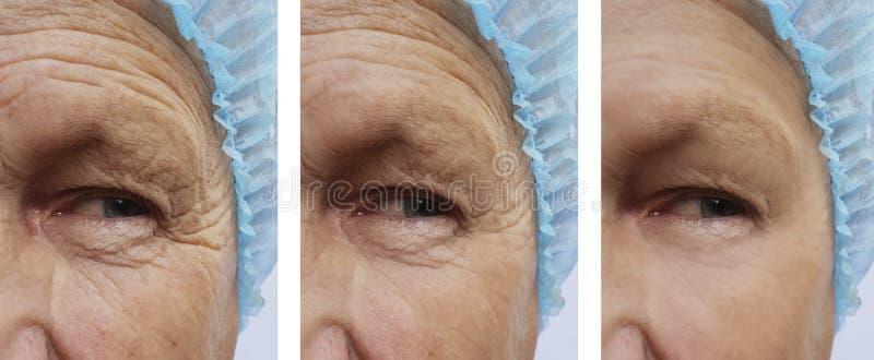 De bejaarden ` s rimpelt de gezondheid van de de dermatologieinjectie van de verwijderingsgeneeskunde op het gezicht voordien na  royalty-vrije stock foto