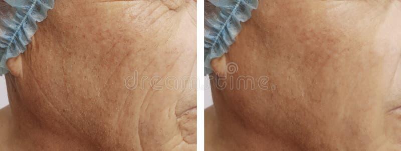 De bejaarden ` s rimpelt de gezondheid van de verwijderingsgeneeskunde op het gezicht voordien na de procedures royalty-vrije stock foto