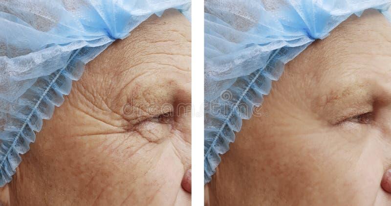 De bejaarden ` s rimpelt verwijderingsgezondheid op het gezicht voordien na de procedures stock foto