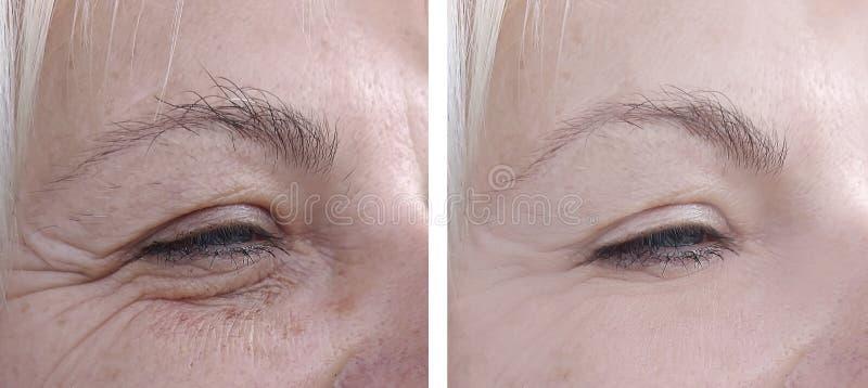 De bejaarden zien rimpelscorrectie before and after behandeling onder ogen stock afbeeldingen