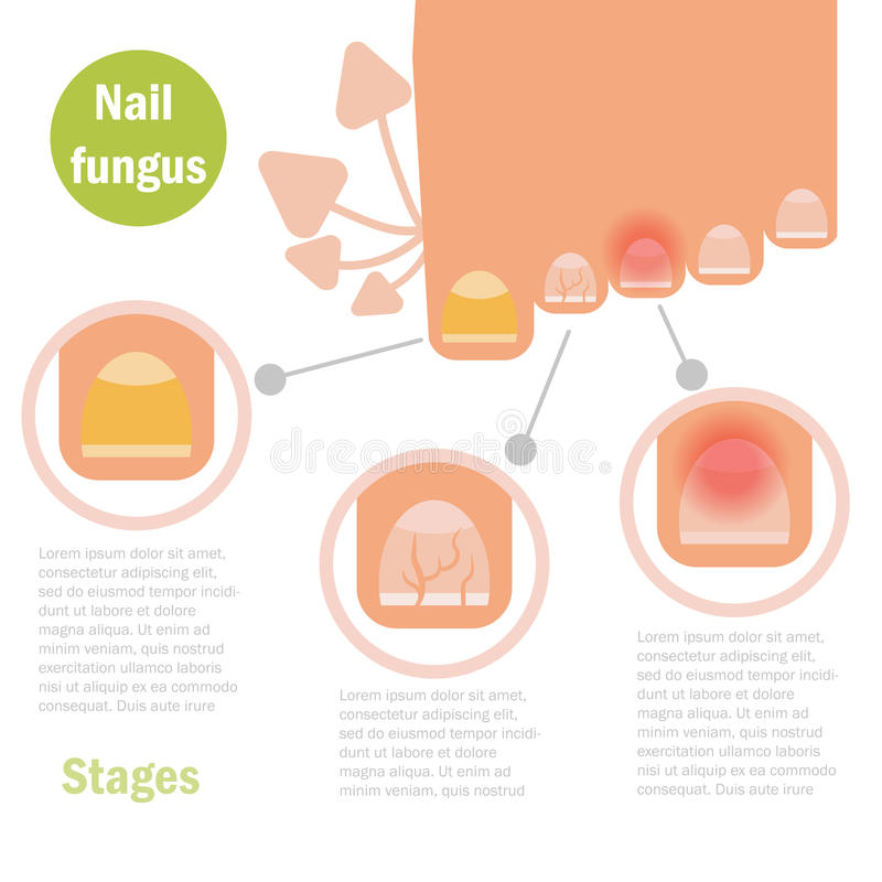 De besmetting van de spijkerpaddestoel royalty-vrije illustratie