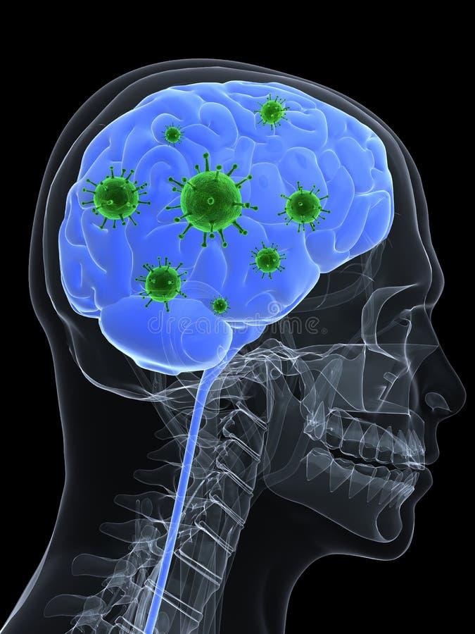 De besmetting van hersenen royalty-vrije illustratie