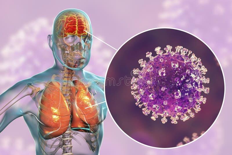 De besmetting van het Nipahvirus stock illustratie