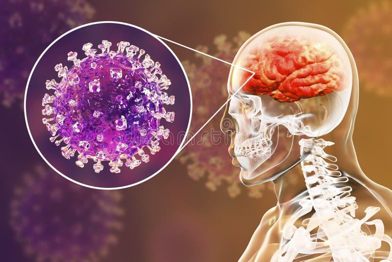 De besmetting van het Nipahvirus royalty-vrije illustratie