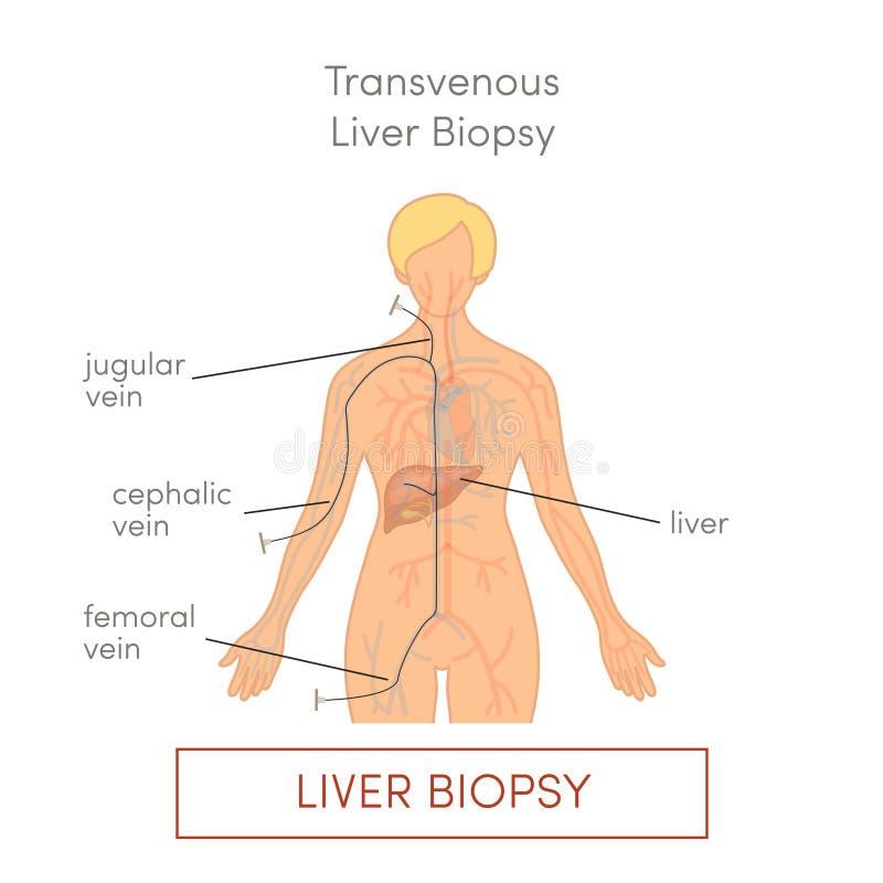 De biopsie van de Transvenouslever royalty-vrije illustratie