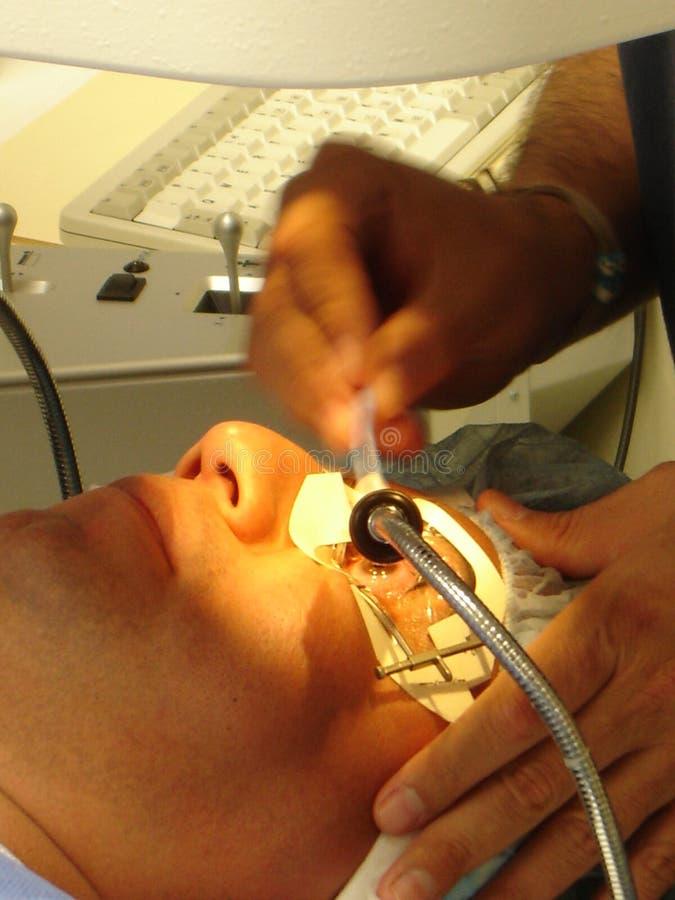 De Chirurgie van het oog stock afbeelding