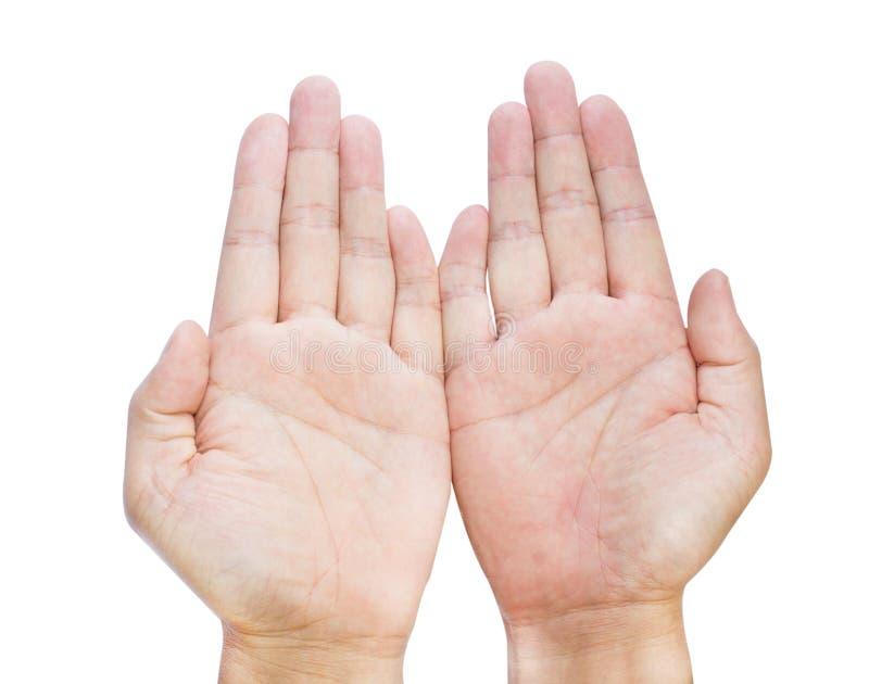 De Clinodactylyvingers isoleerden op de wit ge?soleerde vijfde ziekte van vinger clinodactyly Dupuytren en maakten Handen onbruik royalty-vrije stock foto