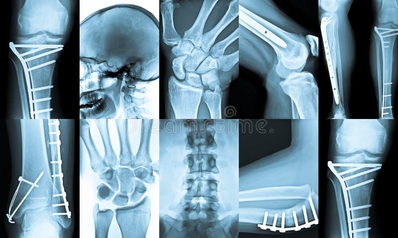 De Collage van de röntgenstraal stock afbeeldingen