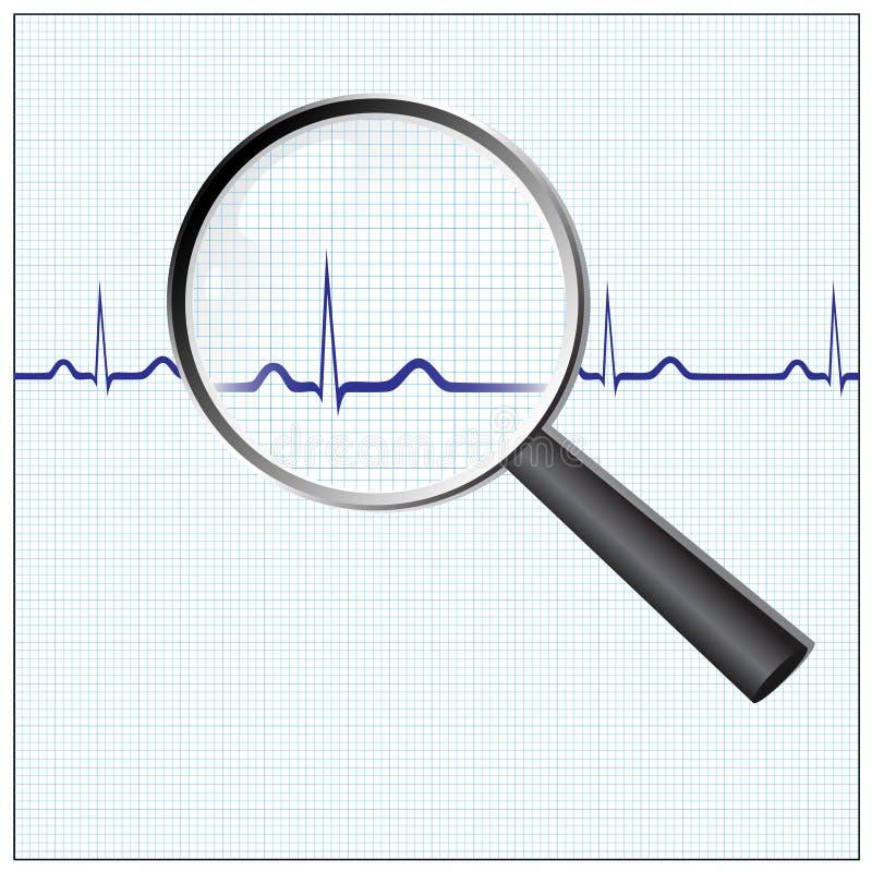 De controle van het hart royalty-vrije illustratie