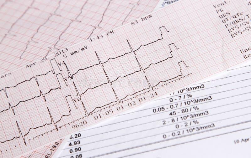 De controle van het harttarief stock afbeeldingen