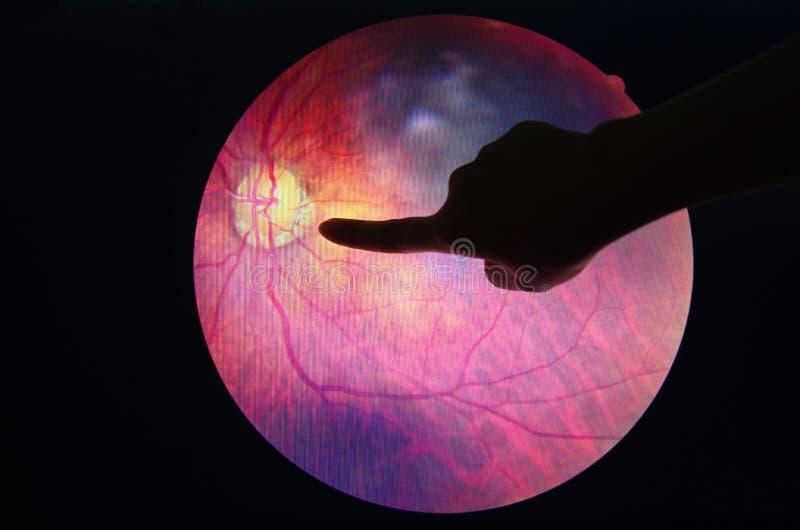 De diabetes van het diagnoseoog royalty-vrije stock foto