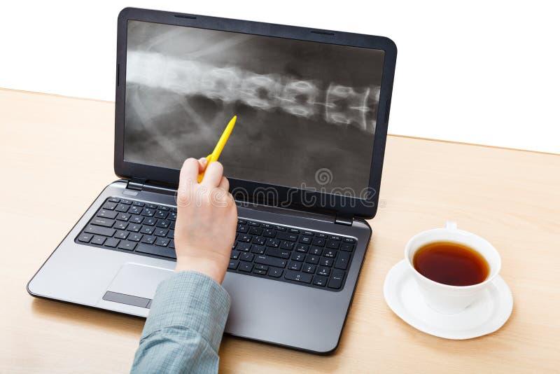 De dokter analyseert Röntgenfoto van stekel op laptop royalty-vrije stock fotografie