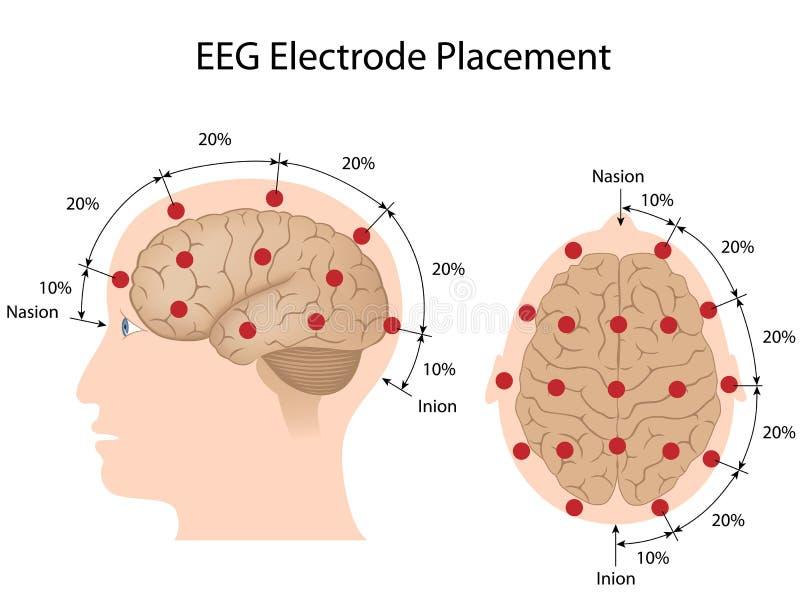 De elektrodenplaatsing van het EEG stock illustratie