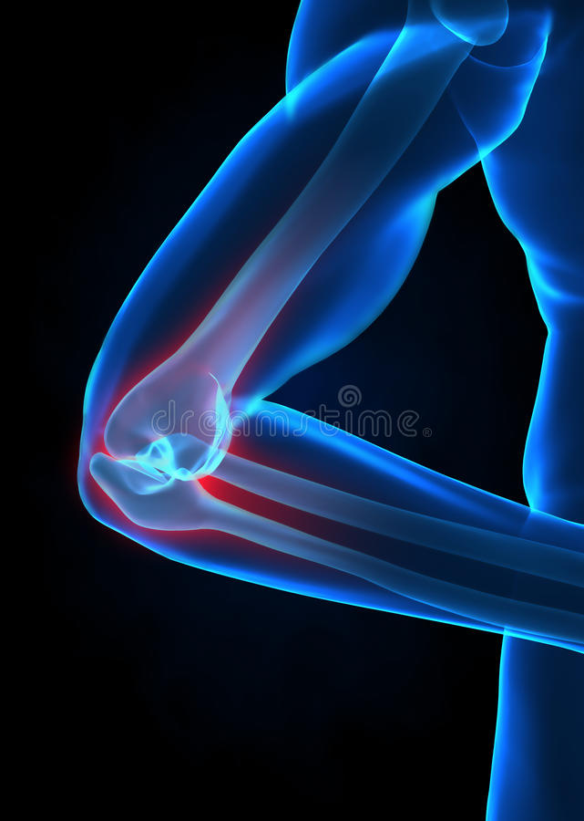 De elleboogconcept van de röntgenstraal stock afbeeldingen