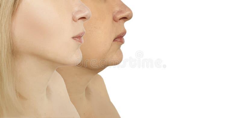 De facelift van de vrouwenonderkin aanhalen die voordien na de collageprocedures van probleem ovale liposuction verzakken royalty-vrije stock foto