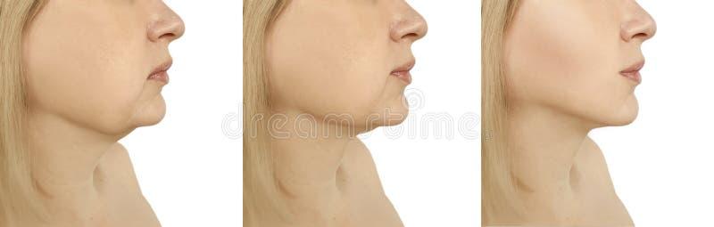 De facelift van de vrouwenonderkin het aanhalen verlies die voordien na de collageprocedures van probleem ovale liposuction verza royalty-vrije stock foto