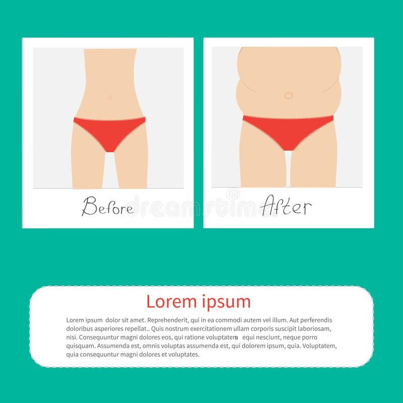 De flaco a la mujer gorda infographic Antes después de foto inmediata Diseño plano ilustración del vector