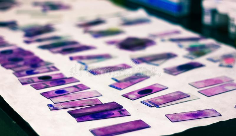 De gebrandschilderd glasdia's van randbloedvlek met violette leishman giemsa bevlekken in het laboratorium van de hematologiepath stock afbeelding