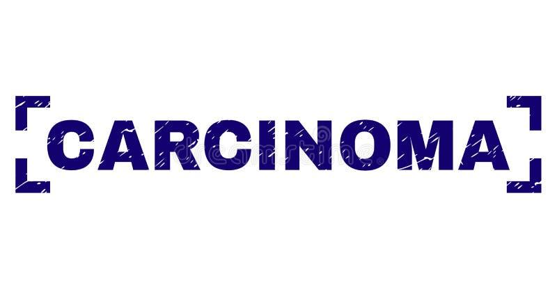 De gekraste Geweven Verbinding van de CARCINOOMzegel tussen Hoeken stock illustratie