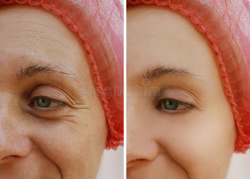 De gezichtsvrouw rimpelt before and after kosmetische anti-veroudert procedures royalty-vrije stock afbeelding