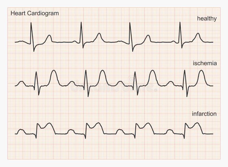 De golven van het hartcardiogram royalty-vrije illustratie