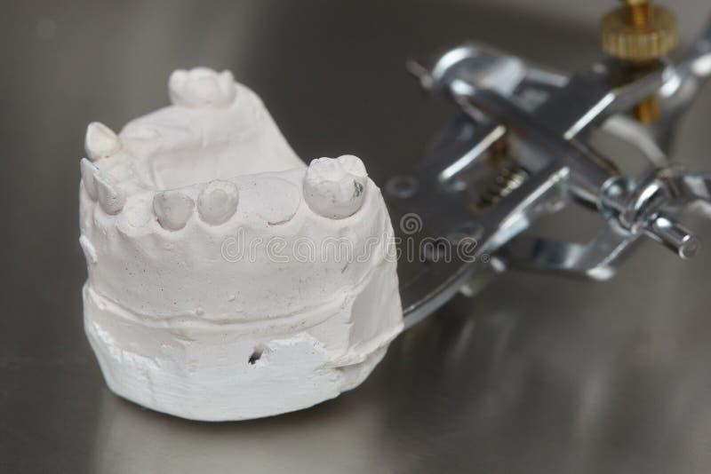 De grijze tandvorm van prothesetanden, model van klei het menselijke gommen royalty-vrije stock foto's