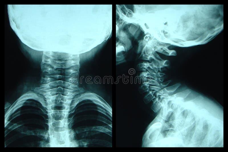 De halsröntgenstraal van het kind royalty-vrije stock foto's