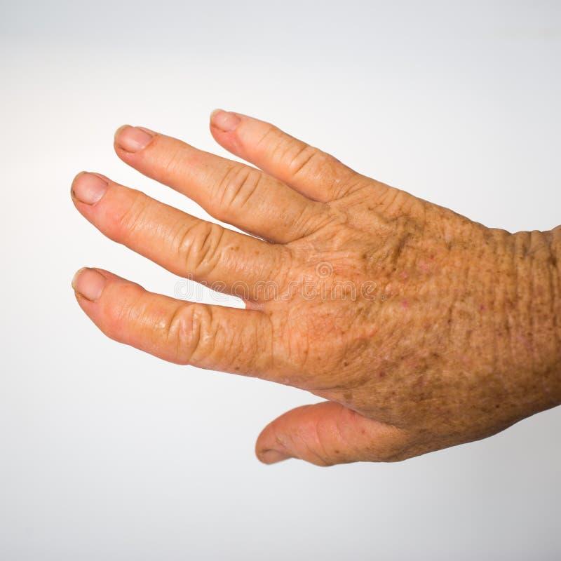 De hand van de oudere dame met artritis royalty-vrije stock fotografie