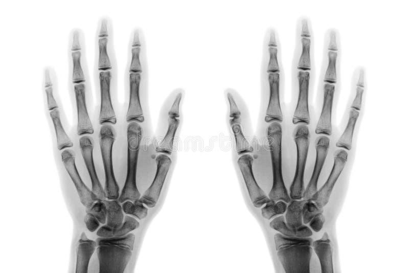 De handap van de filmröntgenstraal zowel toont normale menselijke handen op witte achtergrond & x28; geïsoleerd & x29; royalty-vrije stock fotografie