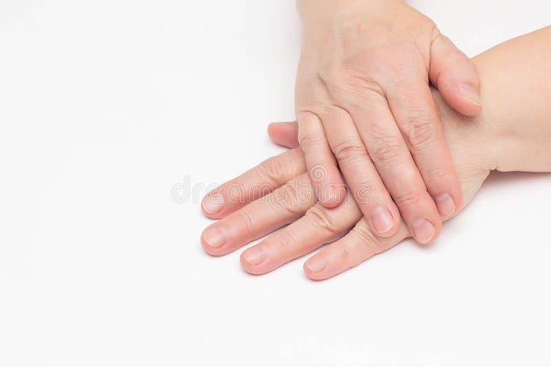 De handen van een bejaarde op een witte achtergrond die huidproblemen, droge en gebarsten huid op de handen, rimpels, close-up he stock foto
