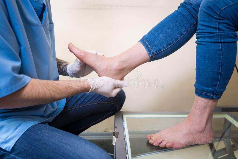 De handen van een jonge man artsenorthopedist leidt diagnostiek, de test van de voetvoet van een vrouw, voor de vervaardiging van stock afbeeldingen