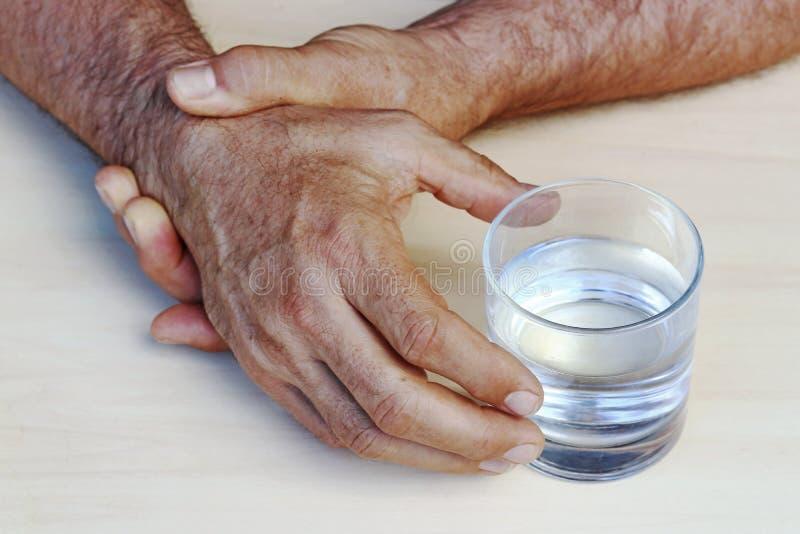 De handen van een mens met de ziekte van Parkinson ` s beven stock foto
