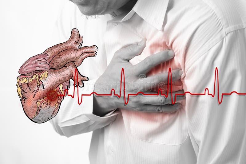 De hartaanval en het hart slaan cardiogram stock afbeeldingen