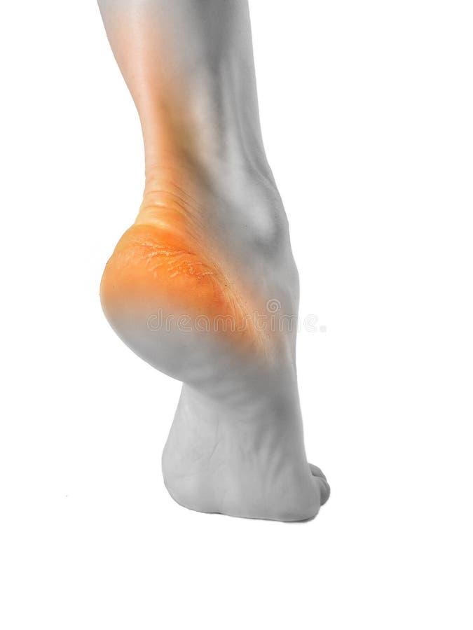 De hiel van de voet met slechte huid is behandeld met barsten stock foto