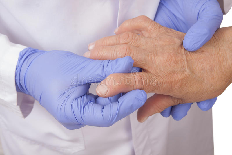 De hogere vrouw met Reumatoïde artritis bezoekt een arts stock foto's