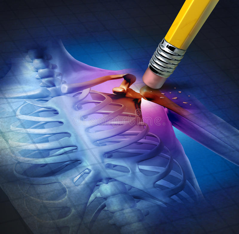 De Hulp van de Pijn van de schouder stock illustratie