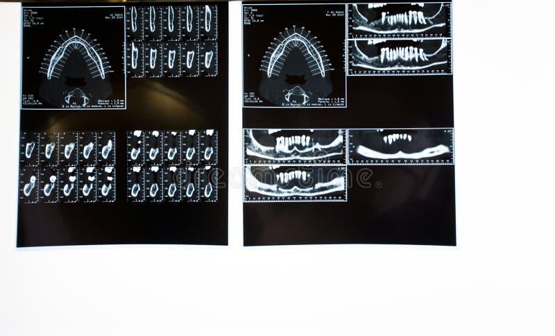 De hulpmiddelen van de tandarts royalty-vrije stock afbeelding