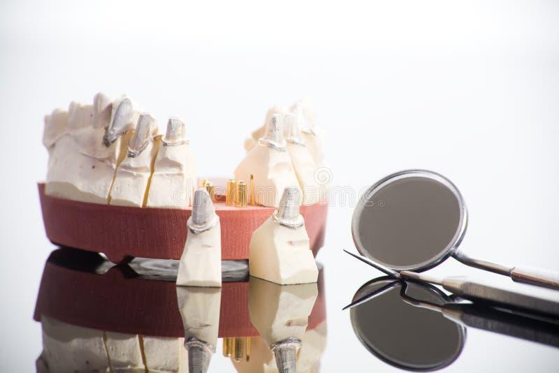 De hulpmiddelen van de tandarts stock foto