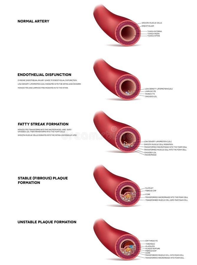 De illustratie van de atherosclerose royalty-vrije illustratie