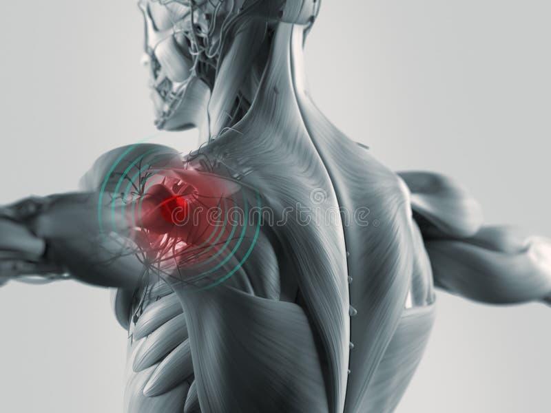 De illustratie van de schouderpijn stock foto's