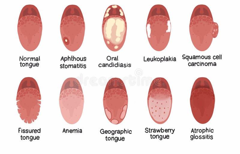 De illustratie van tongziekten royalty-vrije illustratie