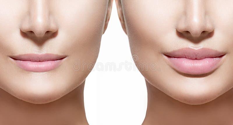 Before and after de injecties van de lippenvuller stock foto's