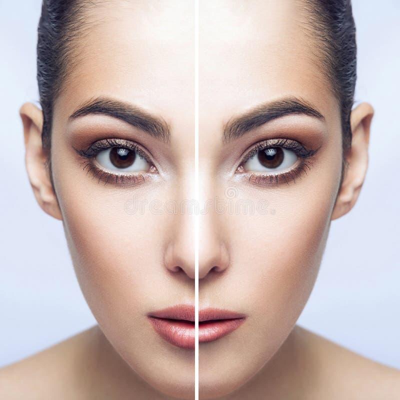 Before and after de injecties van de lippenvuller De perfecte lippen van de lippenvergroting Close-up half portret van mooie donk stock afbeeldingen