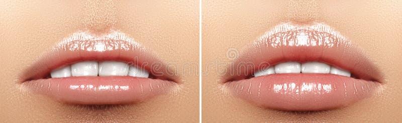 Before and after de injecties van de lippenvuller Schoonheidsplastiek Mooie perfecte lippen met natuurlijke make-up stock fotografie