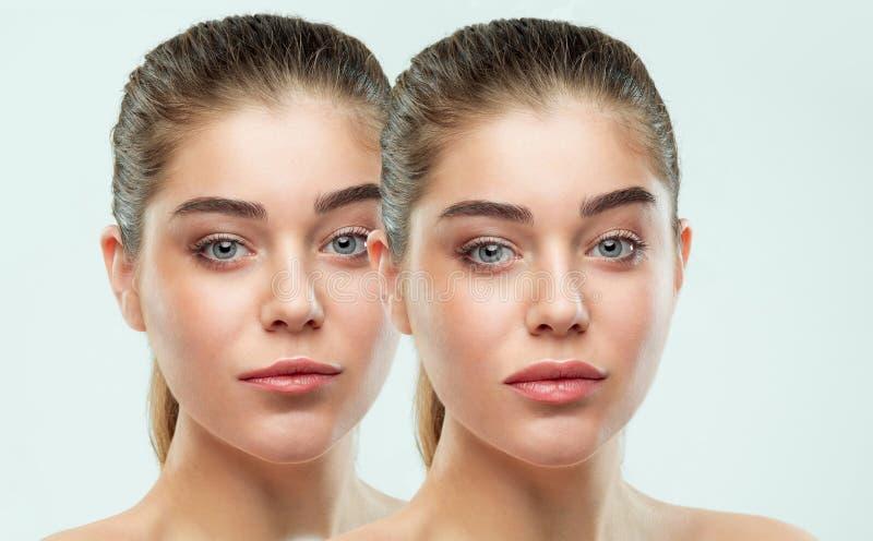 Before and after de injecties van de lippenvuller Schoonheidsplastiek Mooie perfecte lippen met natuurlijke make-up stock afbeelding