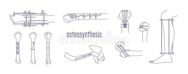 De inzameling van gebroken beenderen en lidmaten bevestigde met metaal inplanteerbare die apparaten met contourlijnen op wit word royalty-vrije illustratie