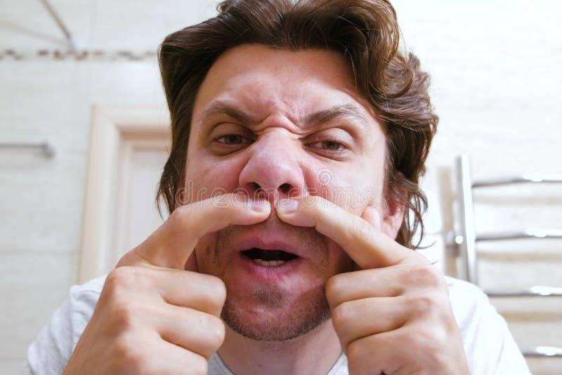 De jonge mens bekijkt spiegel en samendrukking uit een pukkel onder zijn neus Het gezicht van de close-up stock afbeelding